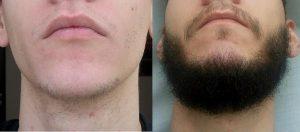Bálsamo cara barba queretaro